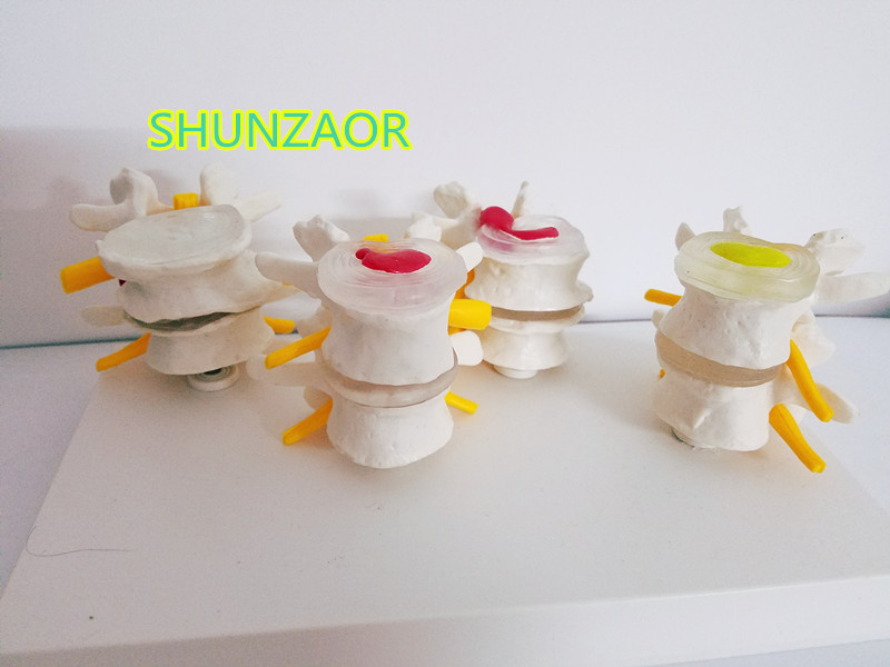 SHUNZAOR human skeleton anatomical 4-stage Osteoporosis Vertebrae Anatomical Model model Nursing Model Skin in trauma skin model dermatology doctor patient communication model beauty microscopic skin anatomical human model