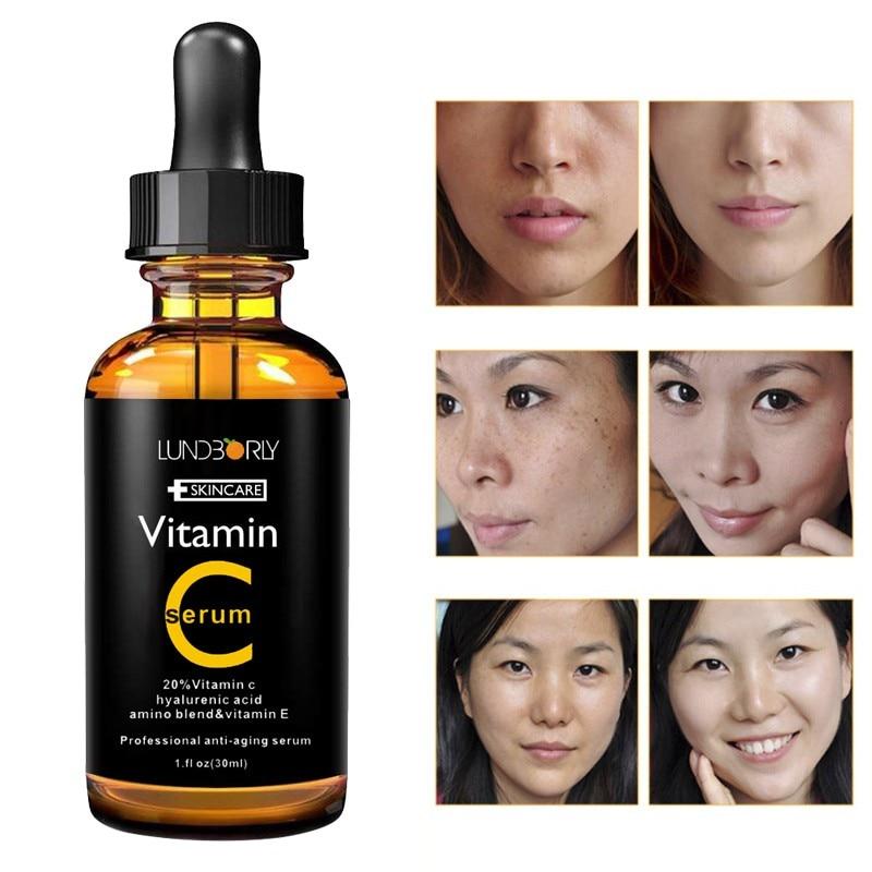 Vitamin C Serum Whitening & Anti-Aging Fade Spots Removing Freckle Anti Winkles Moisturizing Face Cream VC 30ml