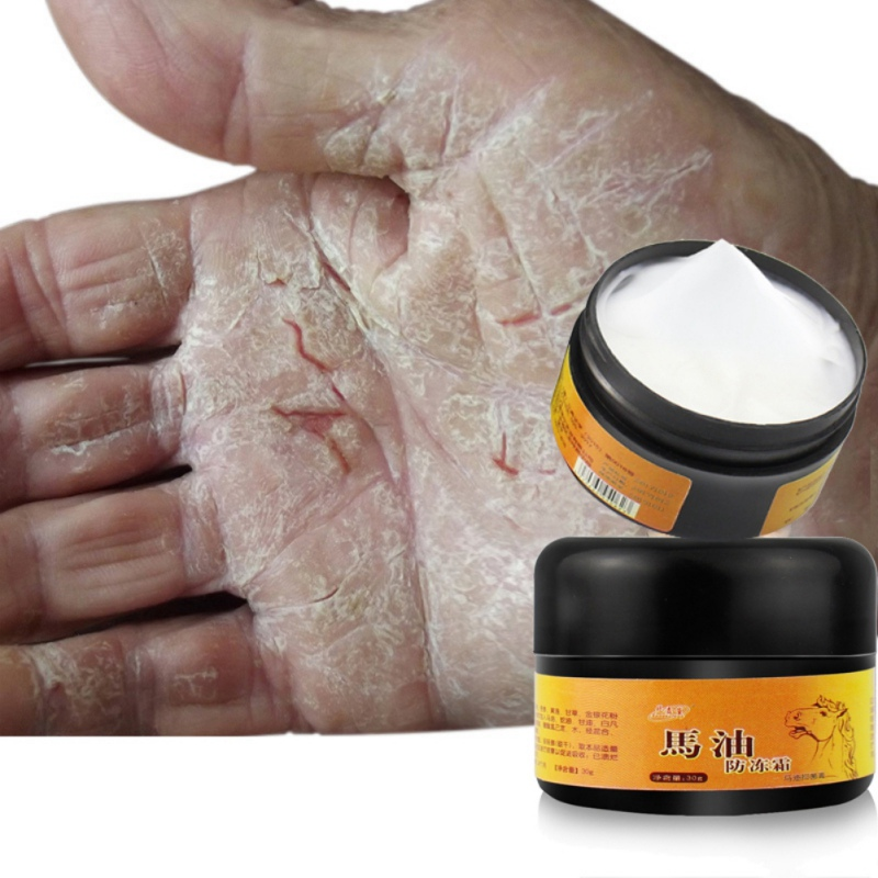 30g Useful Horse Oil Foot Cream Anti-Chapping Skin Repairing Moisturizer For Rough Dry And Cracked Chapped Feet Heel