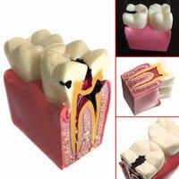 1 pc האנטומיה שיניים חינוך מודלים מחקר Comparation דגם 6 פעמים עששת שיניים לרופא שיניים של לימוד ומחקר