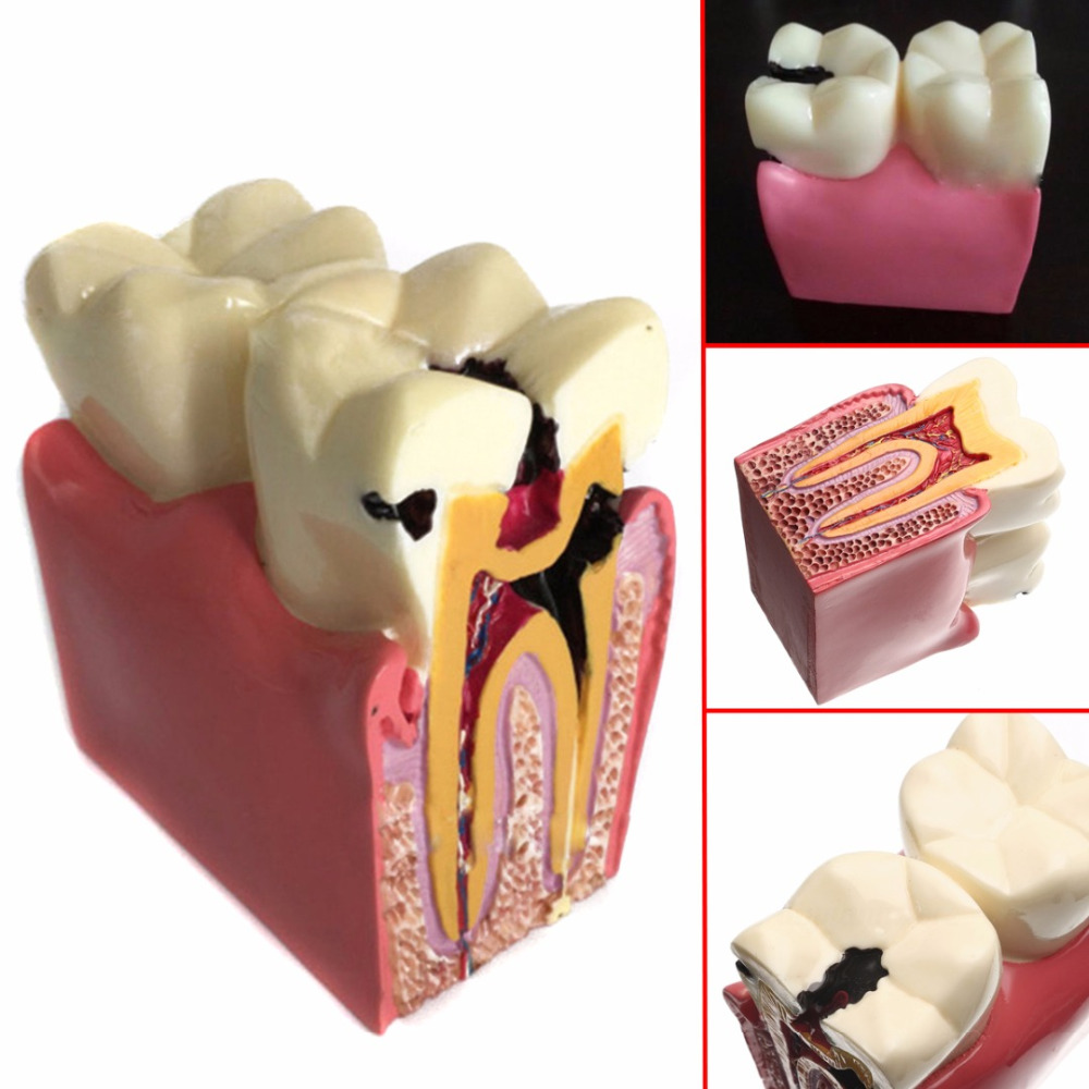1pc Dental Anatomy Education Teeth Model 6 Times Caries Comparation Study Models For Dentist Studying and Researching hot teeth development models teeth and jaw development model dental teeth models
