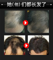 Hair Growth Serum Fast Powerful Hair Growth Products Regrowth Essence Liquid Treatment Preventing Hair Loss For