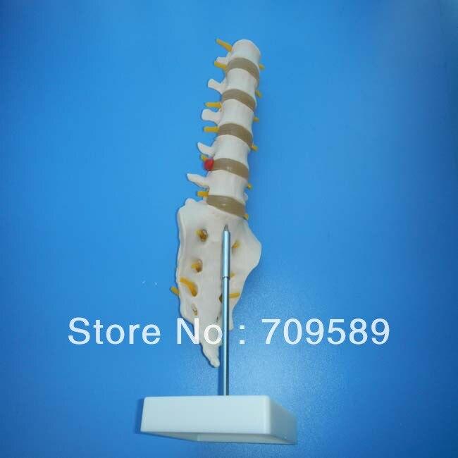 ФОТО life-size lumbar vertebrae with sacrum&coccyx and herniated disc