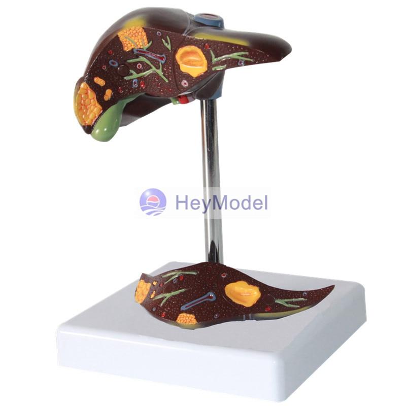 HeyModel Liver pathology model liver disease display цена