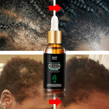 Hair Regrowth Products Treatment Solution