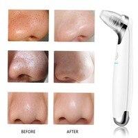Portable Size USB Electric Facial Face Pore Cleanser Blackhead Vacuum Sucker Acne Remover Skin Care Beauty