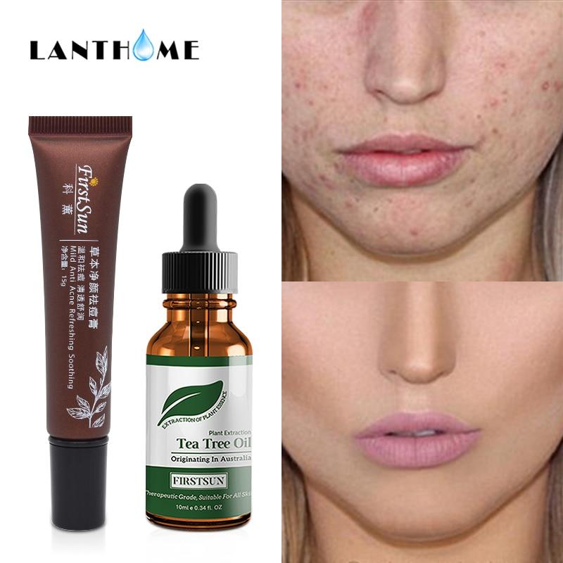 HOT Remove Acne Scar Cream Essential Oil Treatment Stretch ...   Tea Tree Oil Acne Scars