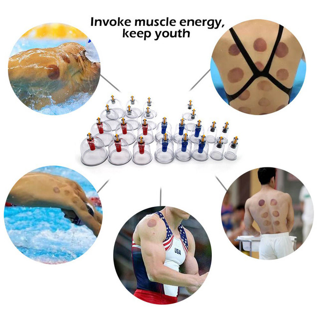 MHKBD 12/24pcs/set Vacuum Cupping Device Suction Cups Medical Sucker Magnetic Treatment Apparatus Banks Body Massage Cans 4
