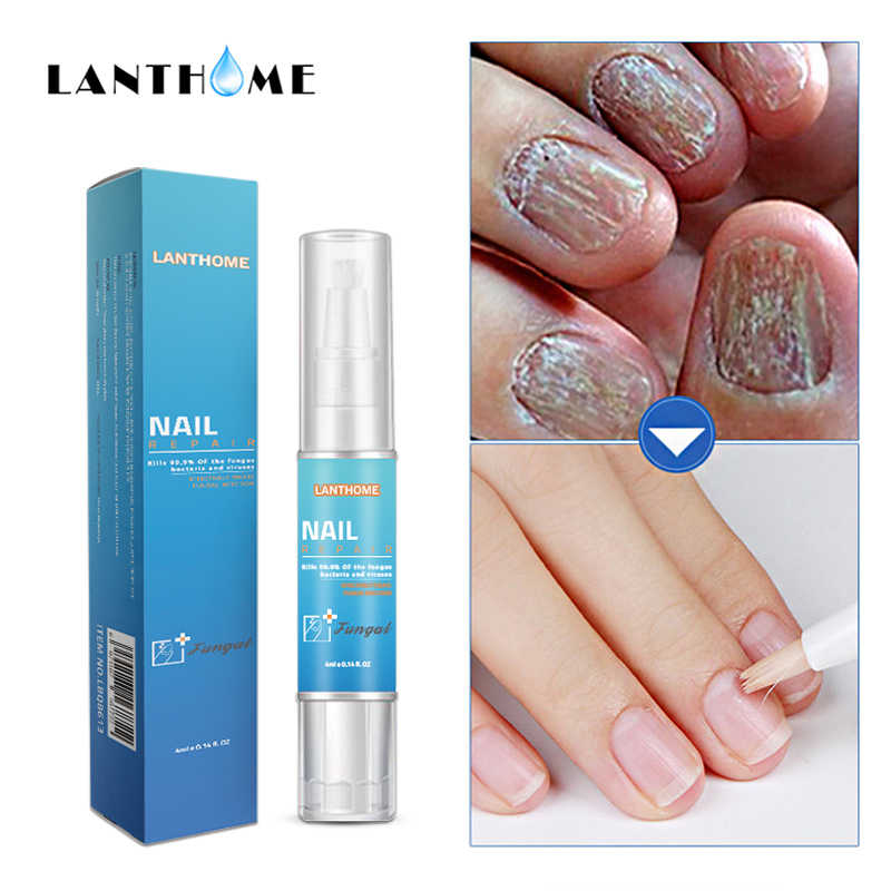 Detail Feedback Questions about Lanthome 100% Plant Nail Foot ...