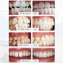 Veneers Tooth Orthodontics Brace Bucktooth Anterior Crossbite Molar Orthodontic Retainers Treatment Teeth Whitening