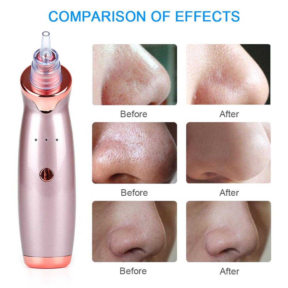 1 Set New Professional Electric Blackhead Remover Pore Vacuum Removal  Blackhead Acne Vacuum Cleaner Facial Skin Care Tool Kit
