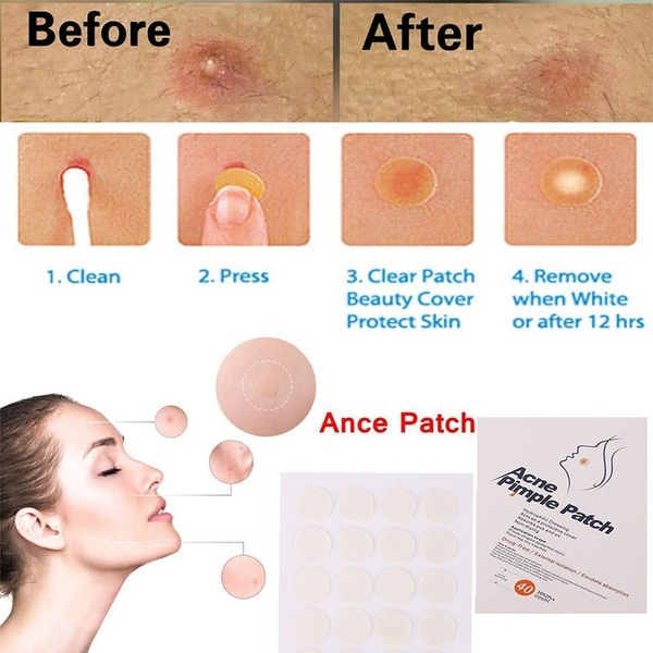 Skin Tag Removal Cream Cvs Natural Skin Care Black Induced Info