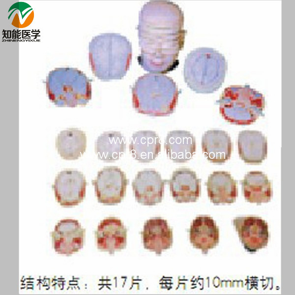 Human Head Neck Anatomical Transection Model BIX-A1072 WBW368 human head anatomical model plastic human head model bix a1044 wbw422
