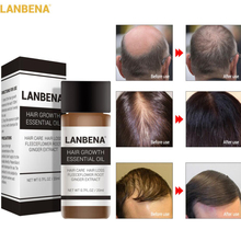 LANBENA 20ml Hair Growth Essence Fast Powerful Hair Care Essential Oil Treatment Preventing Hair Los