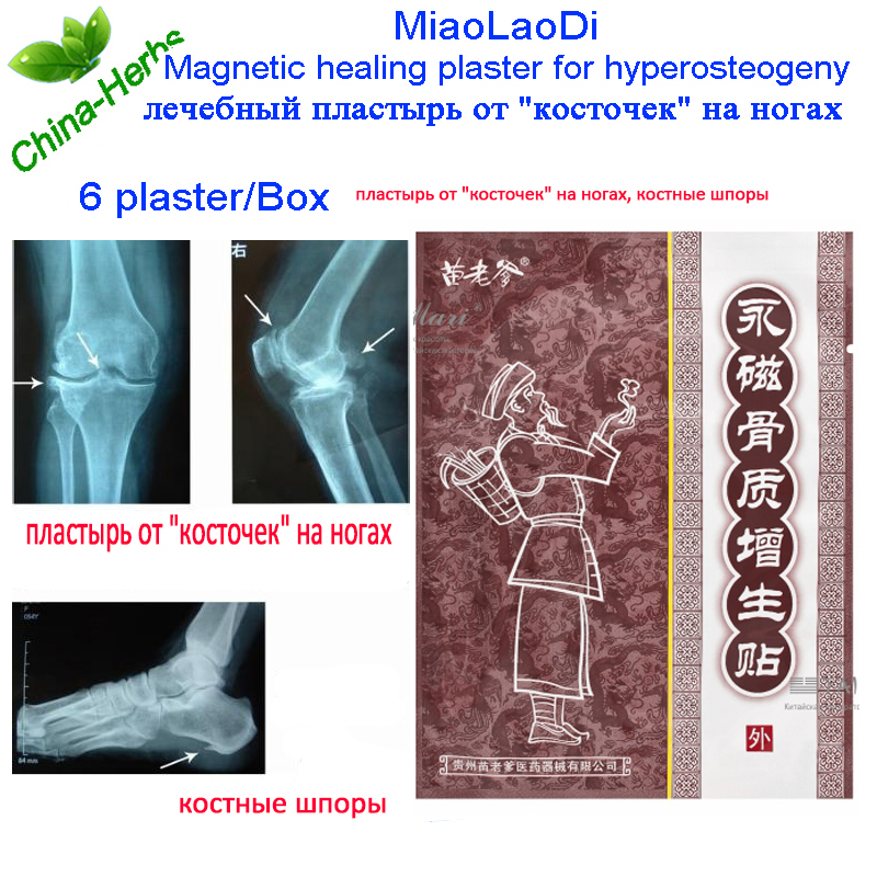 2Pack=12pcs Hyperplasia spondylosis analgesic plaster massage plaster Osteoarthritis Bone pain Magnetic patch for hyperosteogeny 2boxes 12 magnetic patch for hyperosteogeny medical massage patch treat osteoarthritis bone hyperplasia spondylosis herb plaster