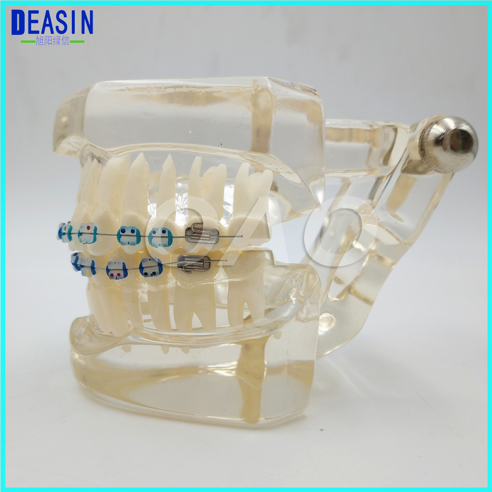 Teeth model teeth Dental Orthodontics Typodont Teeth Model Half Metal Half Ceramic Brace bracket Typodont with Arch Wire dental prosthesis teeth model with metal ceramic bracket brace dentist model denture teaching study model technician tools