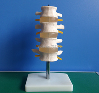 요추 세트 (4 개) 요추 척추 모델