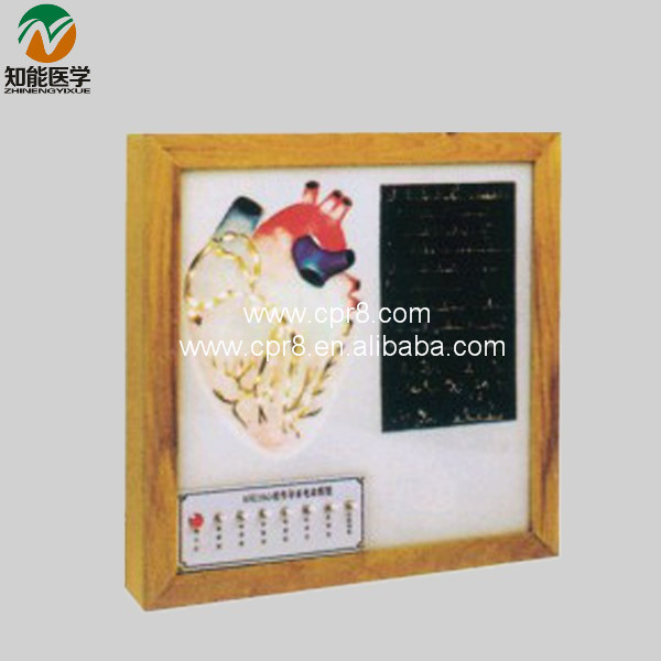 BIX-A1076 Cardiac Conduction System Electric Model Medical Aids WBW397 bix a1079 electric portal collateral circulation model g156