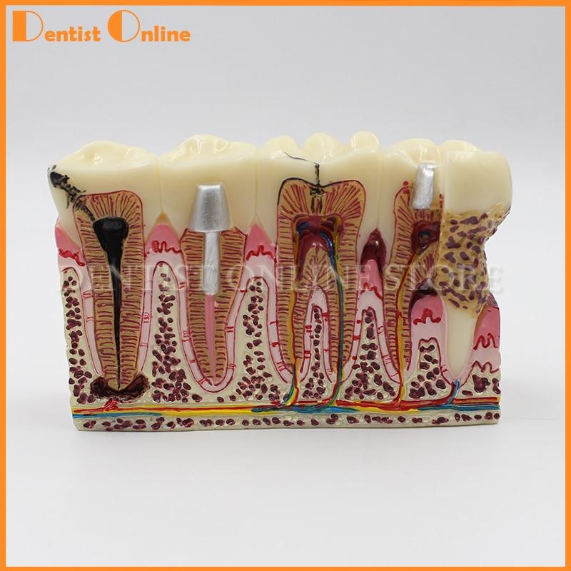 Dents dentaires chaudes Pathologies communes modèle d'enseignement dents blanchissant dentiste pour la Science médicale enseigner démonstration
