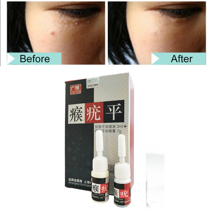 2pcs/set  Skin Tag Mole Wart Remover Eye Skin Tag Remover 12 Hours Remover Liquid