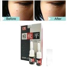 2pcs/set  Skin Tag Mole Wart Remover Eye 12 Hours Liquid