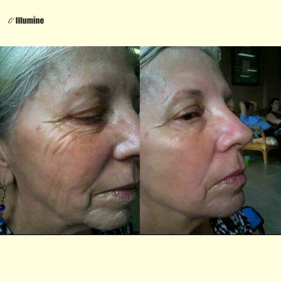 Boto x Instantanément Sans Âge Acide Lifting Puissant Anti-rides Anti-vieillissement Du Visage Soins de La Peau Botulique Concentré