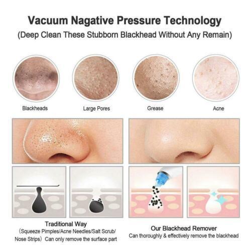 Pore Cleaner Blackhead Remover Vacuum Electric Nose