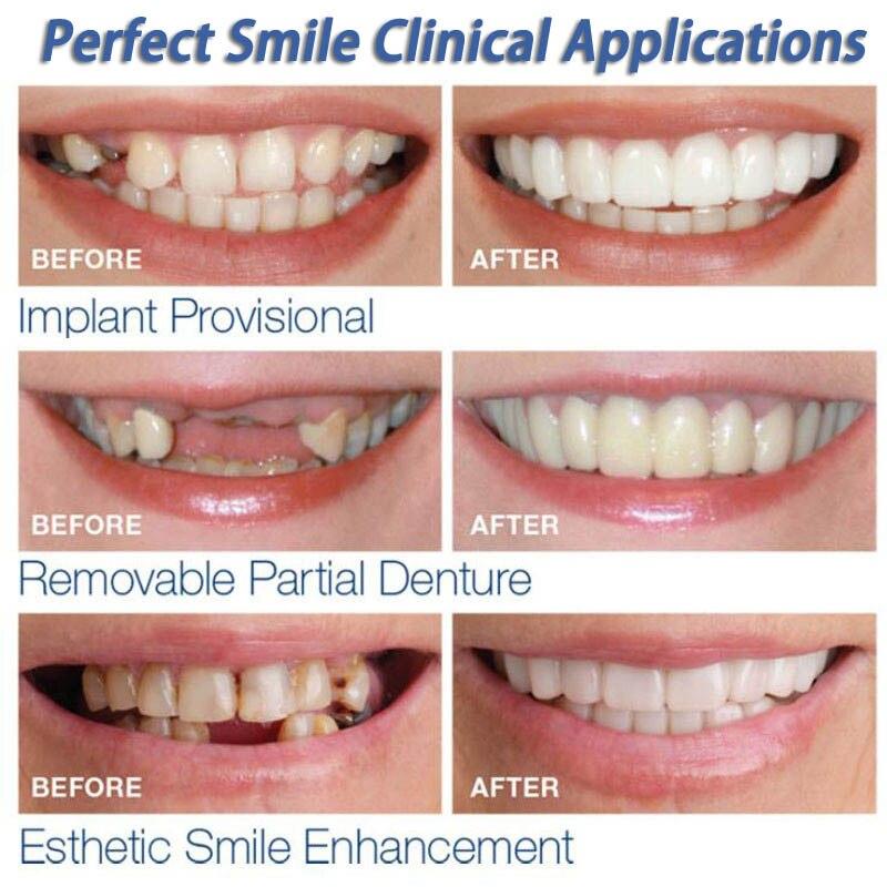 Snap On Teeth Care Cosmetic Secure Instant Natural Upper Veneer Dental False Tooth Perfect Smile Veneers Teeth Whitening 2
