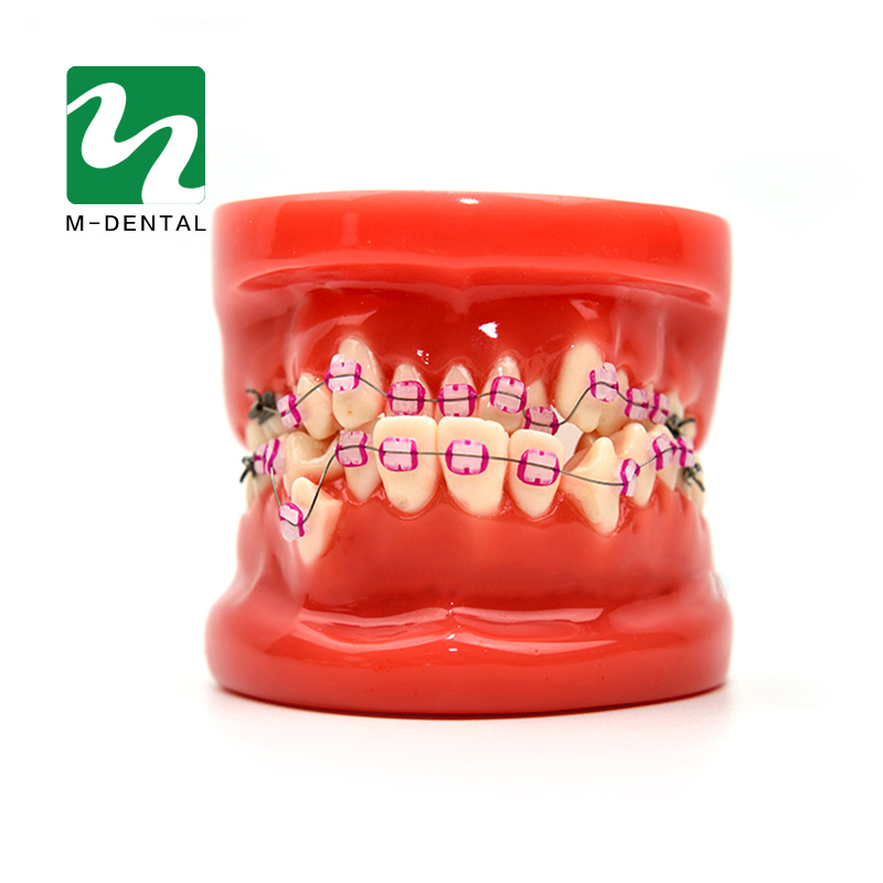 Orthodontic Model 28 Unit Teeth With Half Metal Bracket And Half Ceramic For School Training Study And Communicate With Patients teeth orthodontic model ceramic braces wrong jaw demonstration model orthodontics practice model