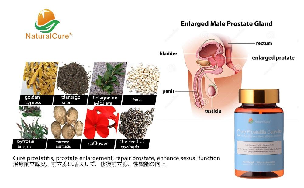 prostatitis Mi ez 7 lézeres prosztatagyulladás kezelése
