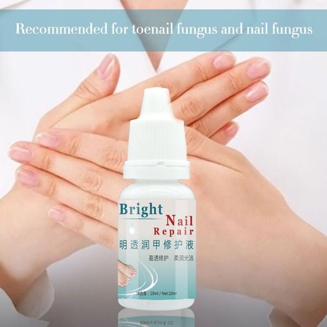 Eliminación de hongos para uñas Esencia de tratamiento de uñas Fungal líquido uñas para blanqueamiento de manos y pies uñas para Onychomycosis