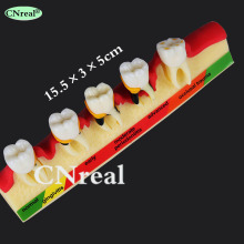 1 pc Dental Teeth Model for Periodontal Diseases' Assorting & Pathology Tooth Classification teeth model dental periodontal disease practice dental model with tartar
