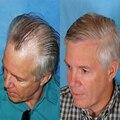 Мужской парик парик волосы система моно шелковый база решение для выпадения волос номера для хирургической замены волос от волос лысый