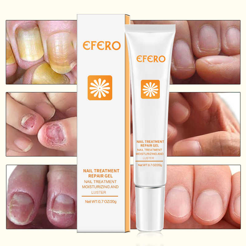 EFERO Fungal Nail Treatment Feet Care Essence Nail Foot Cuticle Remover  Onychomycosis Paronychia Nail Fungal Cream for Women Men