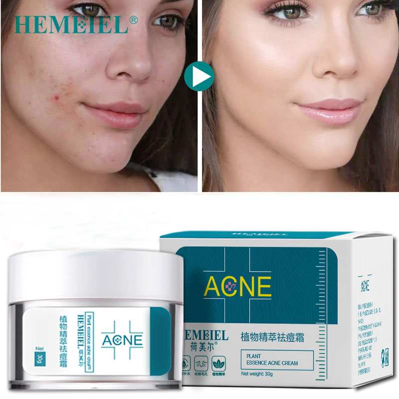 HEMEIEL Facial Acne Treatment Cream Oil-control Shrink Pores Anti Acne Removal Cream Moisturizer Anti acne Scar RemovalHEMEIEL Facial Acne Treatment Cream Oil-control Shrink Pores Anti Acne Removal Cream Moisturizer Anti acne Scar Removal