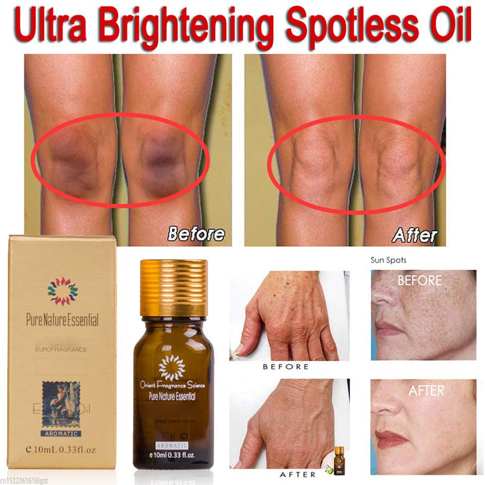 Ultra Brightening Spotless Essence Oil Skin Care Dark Spots Remove Ance Burn Strentch Marks Scar Removal Brightening US Stock