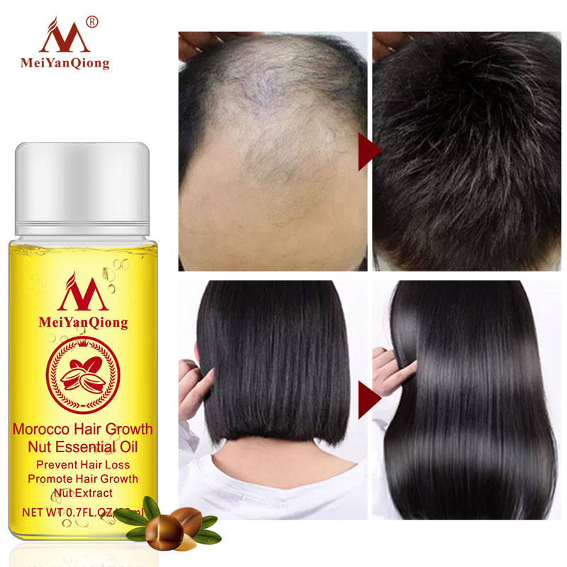 New Arrival Andrea Hair Growth Products Ginger Oil Hair Growth Faster Grow Hair Ginger Shampoo Stop Hair Loss Treatment 1