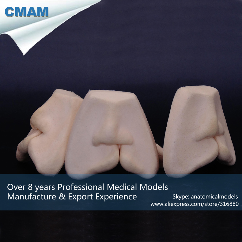 12588 / Cleft Lip Or Anterior Palate Repair Sutures Model,Medical Science Educational Teaching Anatomical Models