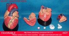 HEART ANATOMY VISCERA MEDICAL MODEL,MODEL OF CARDIAC CARDIAC ANATOMY CARDIOVASCULAR MODEL OF HUMAN HEART MODEL -GASEN-RZJP009