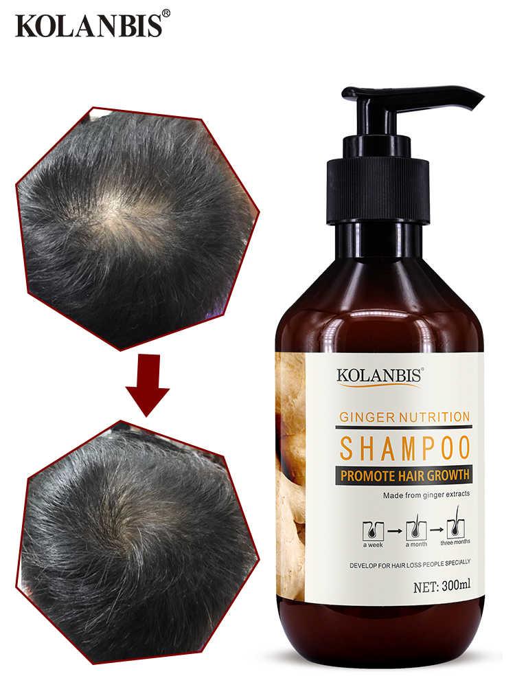 שמפו ג 'ינג דליל שיער לחזק טיפול עבה מהיר שיער צמיחה אנטי קשקשים טבעי שמנוני טיפול אנטי שיער אובדן מוצר