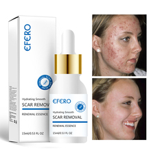 EFERO Face Serum Anti Aging Shrink Pores Hyaluronic Acid Oil Control Moisturizing Whitening Skin Care Essence Face Cream 15ml цена 2017
