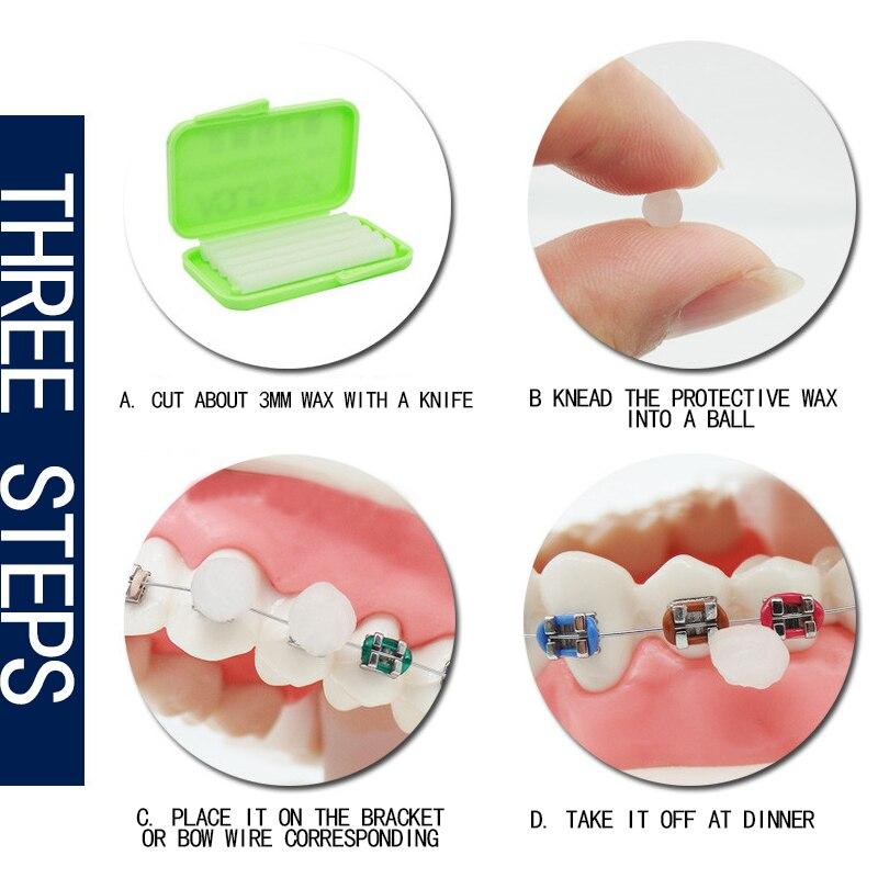 New Dental Orthodontics Braces Gum Protection Wax 3 Flavor Choice Teeth Whitening Dental Oral Care Wax Perfect Smile Veneers