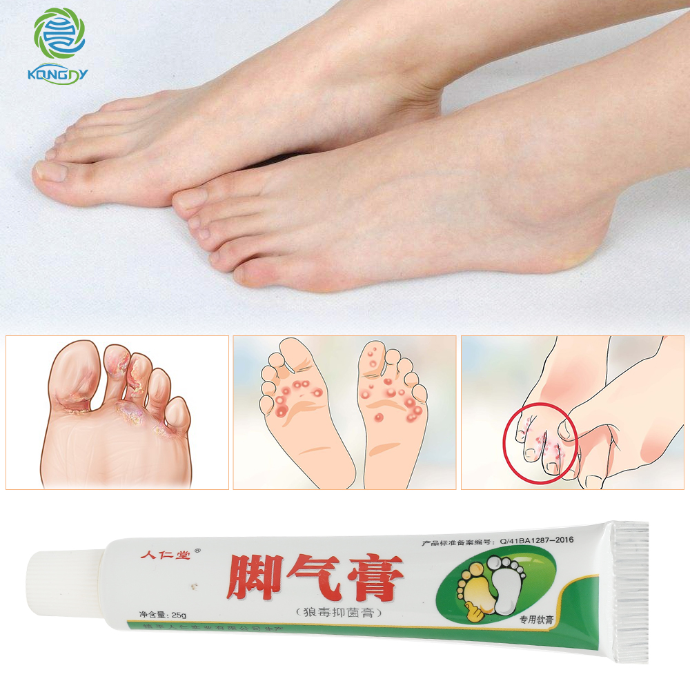 KONGDY Relieve Beriberi Cream Foot Care Chinese Herbal Patch Anti Fungal Infection Feet Repair Herbal Beriberi Treatment Cream