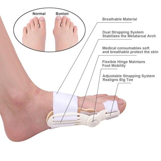 douleur au gros orteil du pied gauche