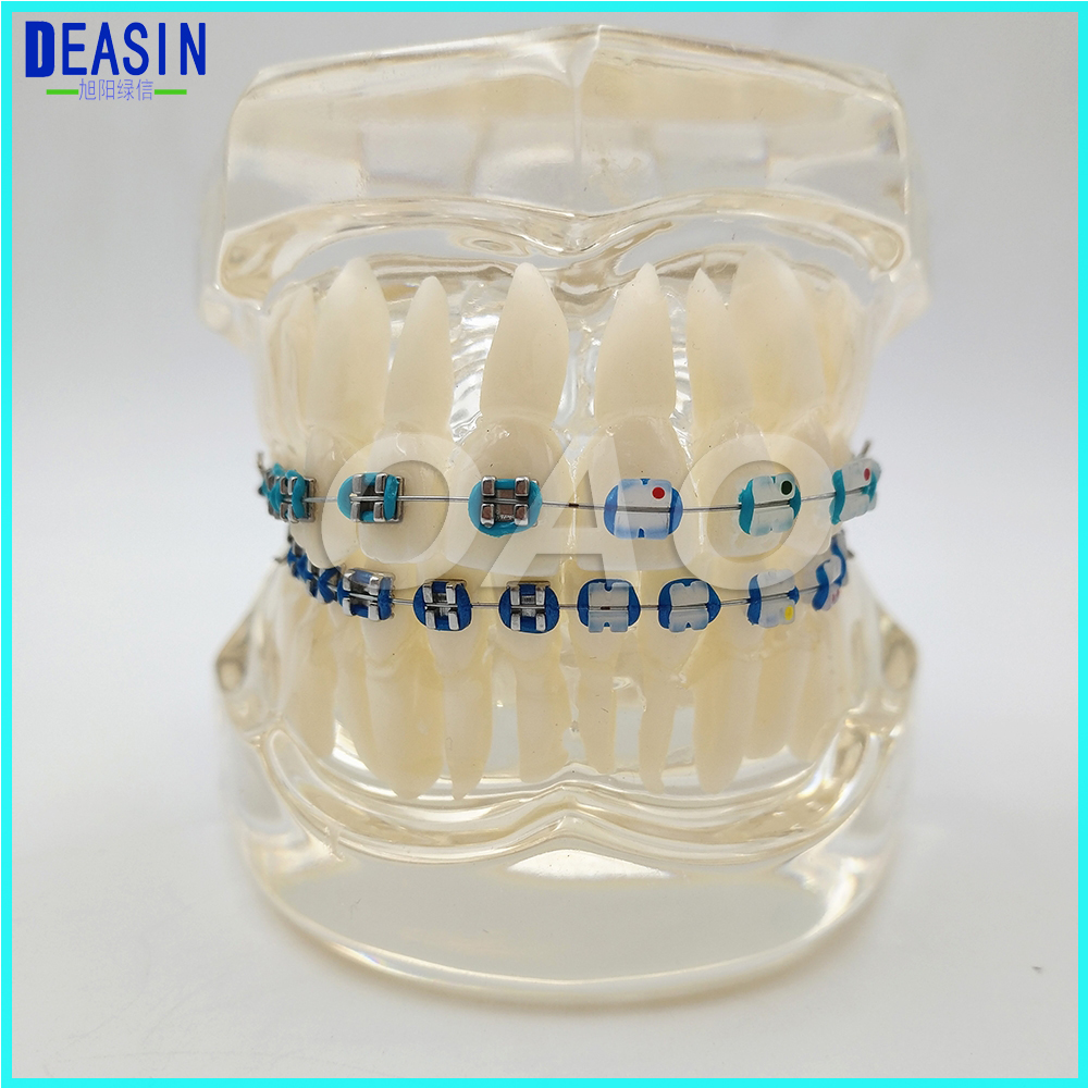 Dental Orthodontics Typodont Teeth Model Half Metal Half Ceramic Brace bracket Typodont with Arch Wire dental prosthesis teeth model with metal ceramic bracket brace dentist model denture teaching study model technician tools