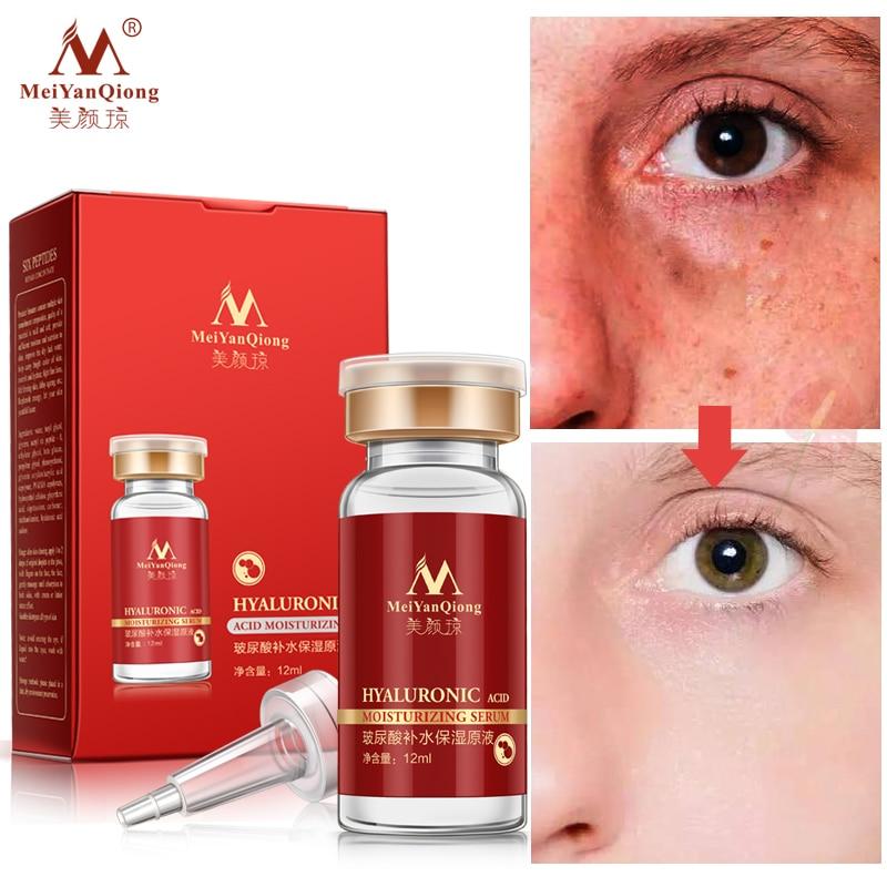 Medical Skin Care: Hyaluronic Acid Moisturizing Serum Beauty Health Skin Care