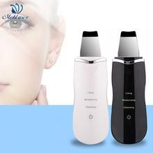 Ultrasonic Face Skin Scrubber Ultrasonic Shovel Peeling Vibration Blackhead Removal Exfoliating Skin Scrubber Galvanic Therapy