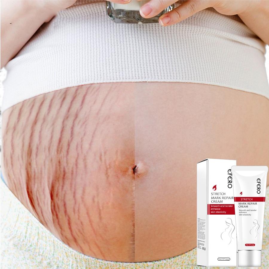 EFERO Stretch Marks Removal Cream Anti Wrinkle Treatment Maternity Repair Remove Pregnancy Scars Acne Cream Firming Body Creams