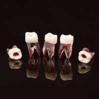 1 pièces modèle de dent dentaire Canal radiculaire RCT pratique cavité de pulpe modèle de dents dentaire en résine claire