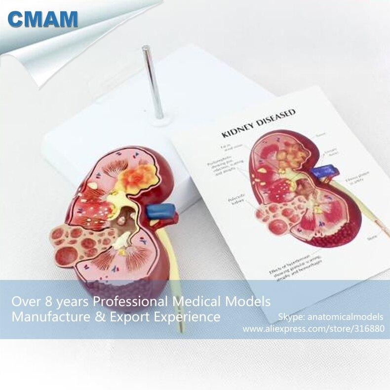 12432 CMAM KIDNEY03 Oversize Zieke Nier Anatomie Model 1 Deel ...